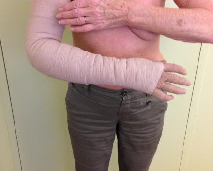 Cursus Oedeemtherapie met MLDV en aangepast zwachtelen, 'Lymftaping en Puntpompen' volgens Philippe De Paepe